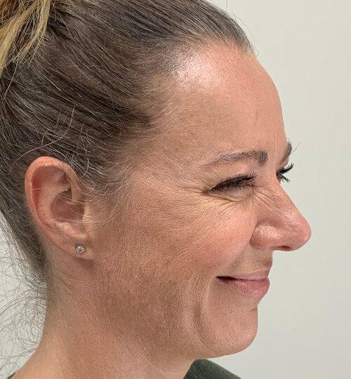 Botox cf web A