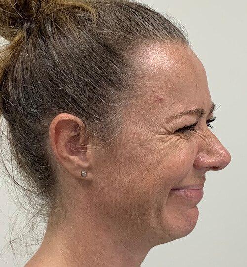 Botox cf web B