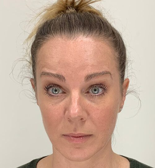 Botox forehead web A