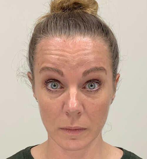 Botox forehead web B