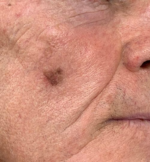 Melanoma cheek