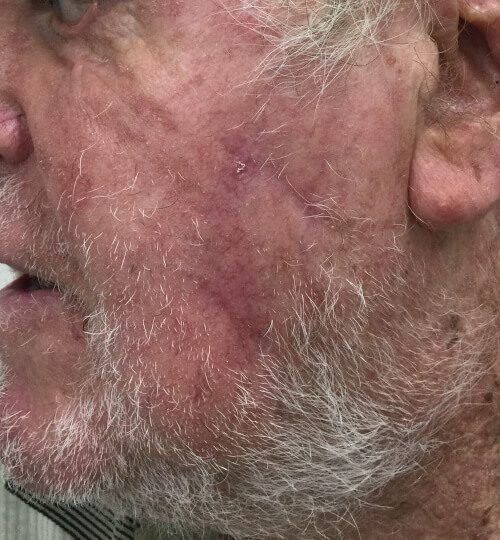 Melanoma left cheek After web