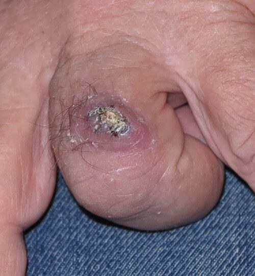 Squamous Cell Carcinoma finger
